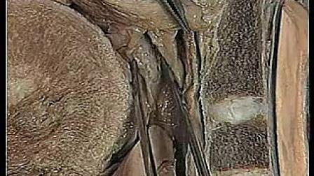 人体解剖学 18 第十八集_标清