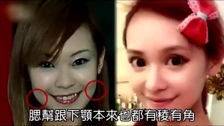 台女星丁小芹再整容 10年进化成漫画少女脸