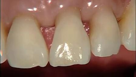 【国外视频】[前牙树脂修复]_标清
