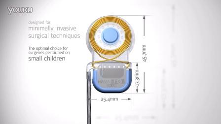 奥地利人工耳蜗Mi1000 CONCERTO人工耳蜗植入体