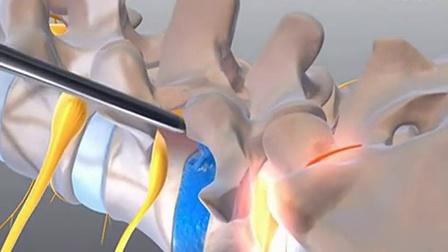 椎间孔镜技术