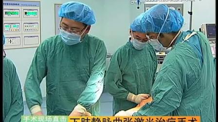 35-(08月31日)【下肢静脉曲张激光治疗手术】李君 王豪夫