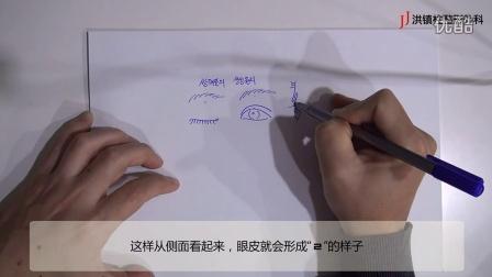 韩国整形-JJ洪镇柱整形外科双眼皮手术的原理及方法