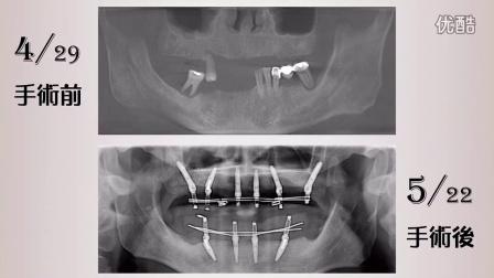 新当代高压氧植牙中心 All on 6 + All on 4 全口重建快速植牙