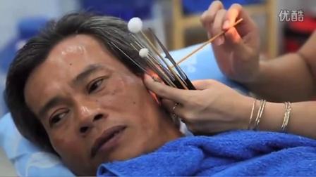 越南式采耳 掏耳 挖耳 簡介 耳結 耳垢 耳屎