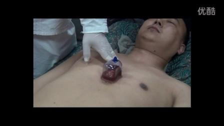 金范道心天泻血疗法操作视频