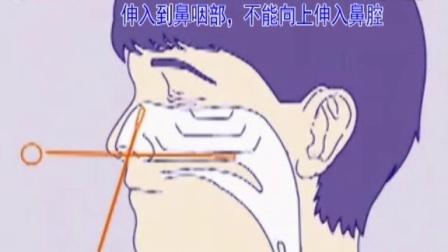 鼻拭子采集方法