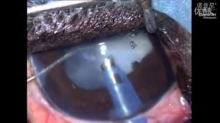 白内障超声乳化联合人工晶体植入术