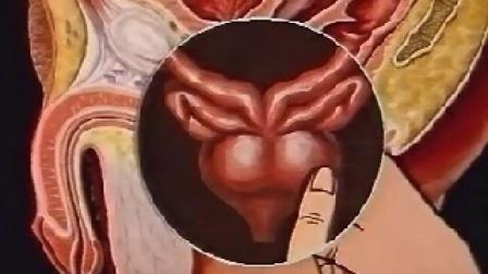 前列腺按摩-视频教程