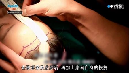 凯伦秀特有的发际线调整术 —— 额头缩小术