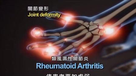 澳大利亚关节炎患者的物理治疗福音-循环畅通、疾病无踪