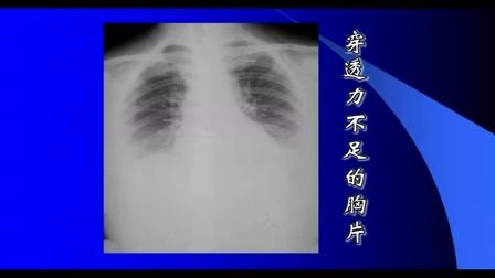 影像学 放射诊断学 02