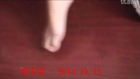 脚踝错位,怪手堂免费快速复位效果对比!jiaohuaicuoweinver