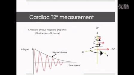 心血管磁共振系列讲座6 - T2* CMR in cardiac iron overload