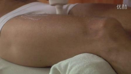 BTL冲击波治疗--止点疼痛(腹股沟区)