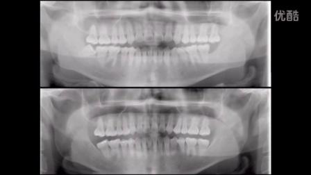 《益锐。正畸》一例疑难的三类open bite 病例展示-Chris Chang