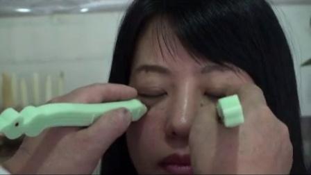 中医病毒性角膜炎调理