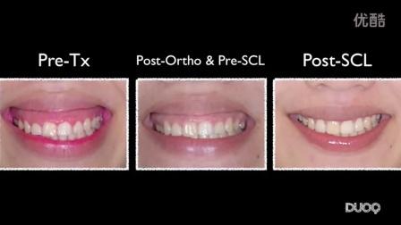尼玛大龄骨性龅牙美国绑牙记