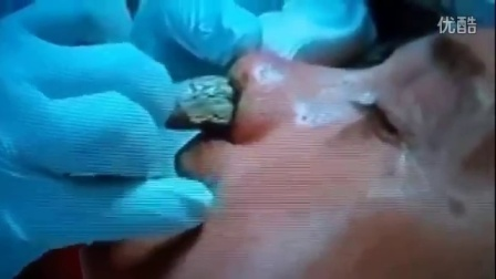 全世界最大顆鼻屎~ 這鼻子的容量也太大了吧!