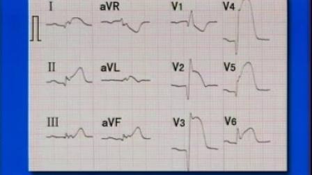 心电图视听教材2(异常心电图)