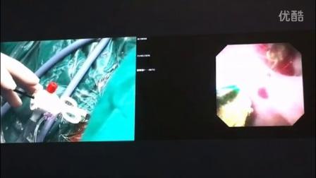 深圳康医博带吸附清石及测压装置的输尿管软镜导引鞘-上海长海医院高小峰教授手术演示