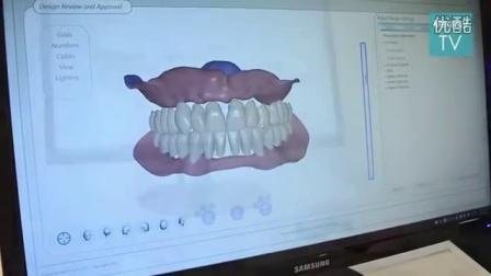2015科隆国际牙科展(IDS)MedicalExpo专访Avadent公司业务总监Nick Thompson