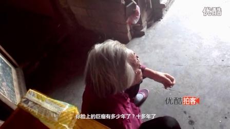 【拍客】青岛老人脸长罕见巨瘤无钱医治怕吓着小孩八年不敢出家门