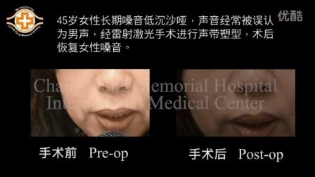 台湾林口长庚医院 - 声带治疗 女性男声