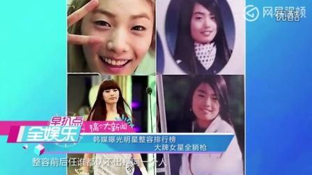 韩国明星整容排行榜,一线女星均入围。