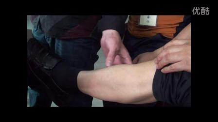 陈健放血疗法-血络的辨认
