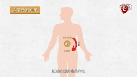 """大肠癌""""偏爱""""重口味1080p"""