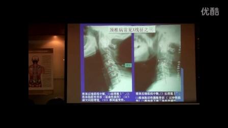 中医教学-陈忠和之颈椎常见病损的X光表现