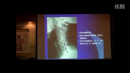 中医教学-陈忠和之颈椎X光片的阅片与测量侧位