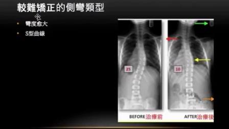 閻曉華說脊椎側彎 第四章脊椎側彎的曲線類型