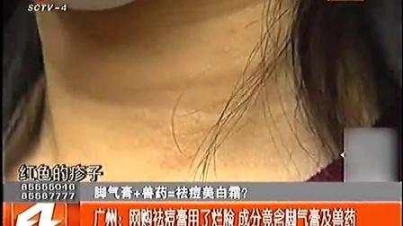 广州:网购祛痘膏用了烂脸 成分竟含脚气膏及兽药 170112 第四直播间