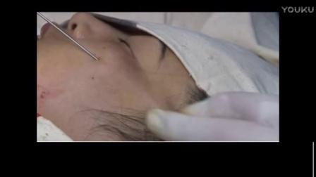 微整形技术培训18注射美容视频(1)18水光针教程