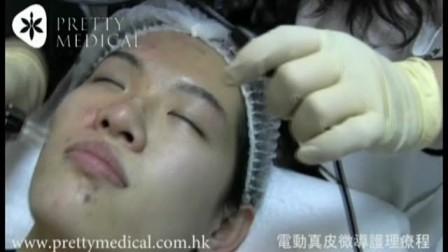 電動針皮微導護理療程