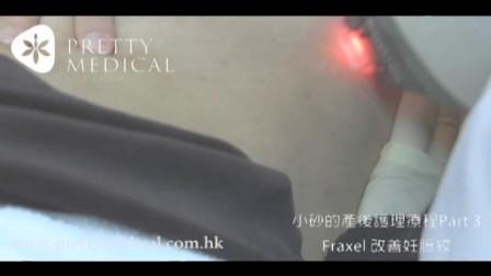 小砂的產後護理療程Part 3_fraxel改善妊脤紋