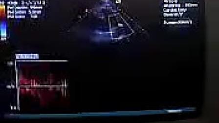 VIDEO0035