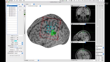 Creating a grid on the cortex with individual nodes with independent orientation