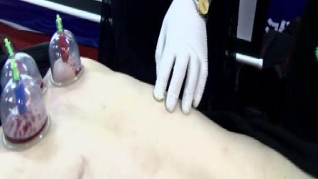 孙一刀院长近视眼·刮骨泻血·子午针展示.mpg