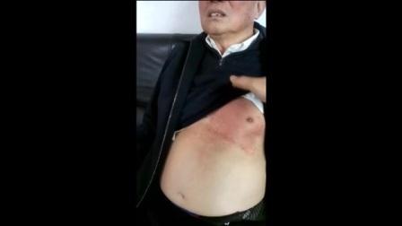 道医男性乳房痛
