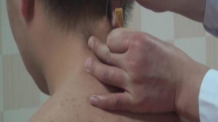 中医针灸美容埋线培训班 李洋循经穿刺埋线松解术 埋线 项韧带钙化埋线1