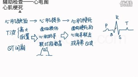酷学习医学-心电图7-心肌梗_高清