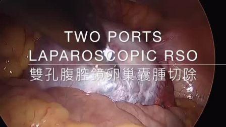 双孔腹腔镜卵巢囊肿切除手术