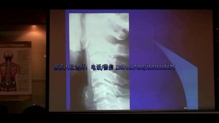 中医针灸推拿正骨培训 陈忠和教授颈椎常见病损的X光表现