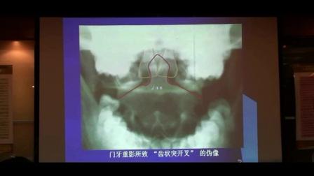 中医针灸推拿正骨培训 陈忠和教授颈椎的变异和先天畸形X光片