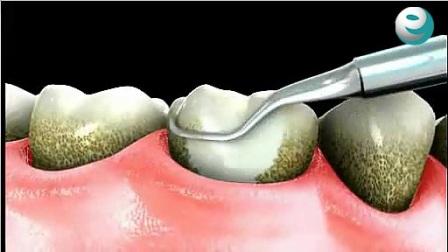 e名牙医 洗牙洁牙 超声波洗牙