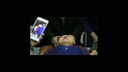 中医教学-王红锦颧骨、额骨的调整