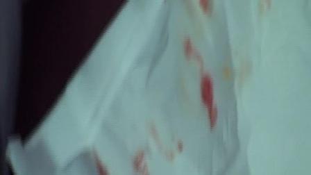 咽炎·痔疮调羊毛疔视频绝技
